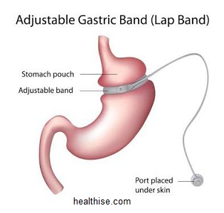 gastric band surgery to lose extra stomach weight
