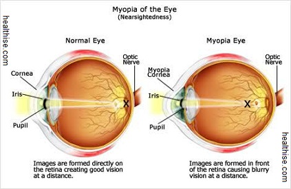 myopia causes and its occurence
