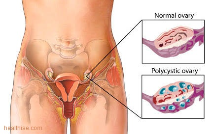 polycystic ovarian syndrome to infertility