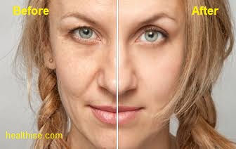 tips on anti aging treatment