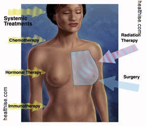 types of cancer and therapies