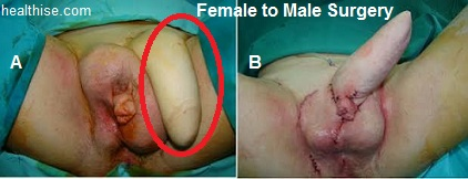 female to male surgery - sex change surgery
