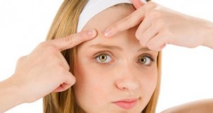 acne treatment for girls and men