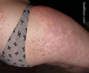 skin rash treatment