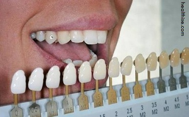 Cosmetic Dentistry on Teeth Color