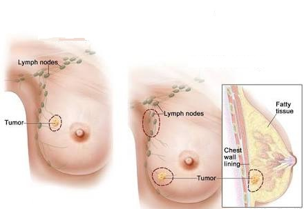 breast lump and Benign Breast Cancer