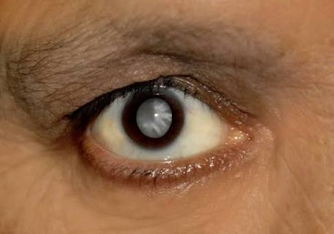 eye cataract prevention