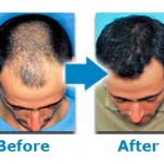 Hair Loss Medicine And Dosage
