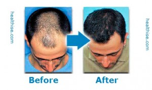 healthise hair loss medicine information
