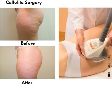 Cellulite Care with Cellulite Surgery treatment