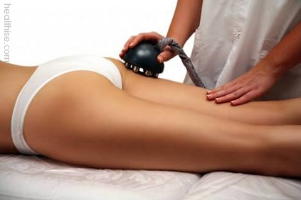 Cellulite Care with Cellulite Surgery