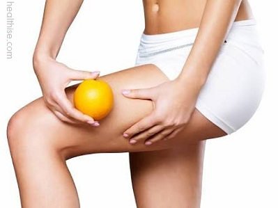 Cellulite Treatment - Diet and Exercise for Cellulite Cure