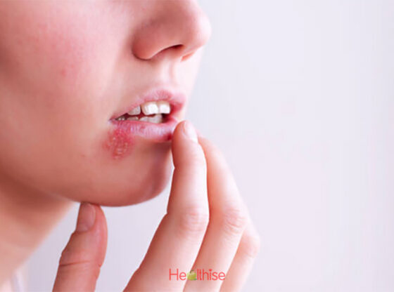 Herpes ayurvedic home remedies causes, symptoms, signs, foods, diet and prevention