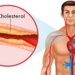 Cholesterol Overview