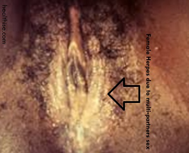female herpes due to excessive sex