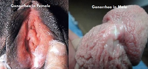 gonorrhea in Female and male