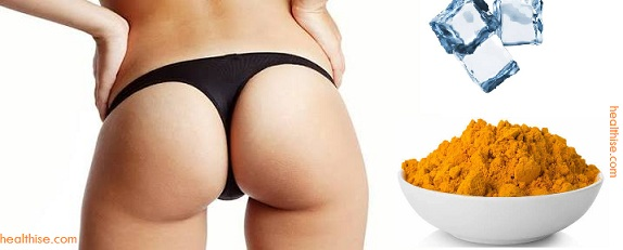 Ice packs warm treatment turmeric to cure buttock acne pimple boils