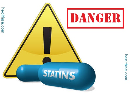 Truth About High Cholesterol Statins Drugs like Lipitor