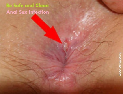Infection from anal