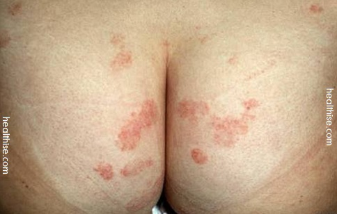 asscheeks - pimples acne boils herpes psoriasis eczema hemorrhoids and fungal infection