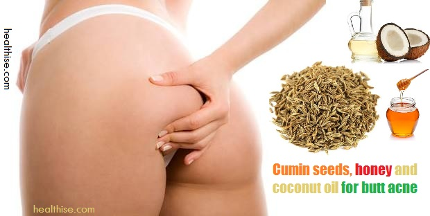 buttock cheeks acne and herpes infection treatment cure