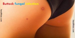 buttock pimples - butt acne - bum boils treatment