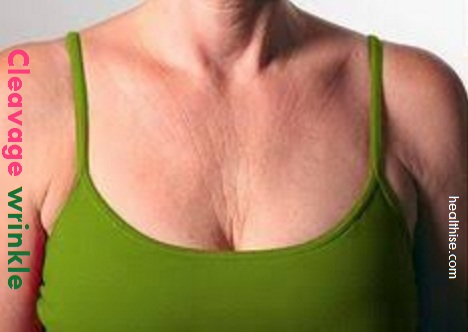 cleavage wrinkle treatment