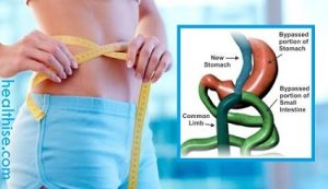 mini gastric surgery for obesity