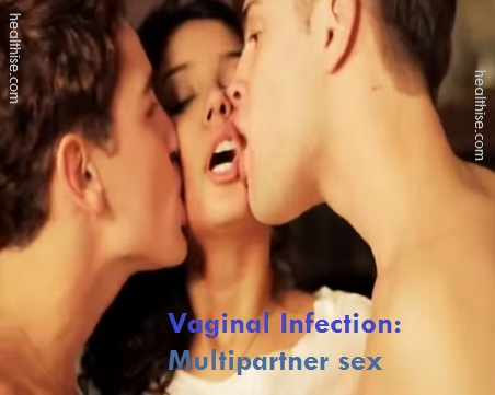 vaginal infection due to multipartner sex by woman