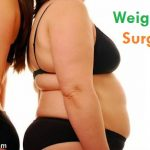 What is the Best Weight Loss Surgery?