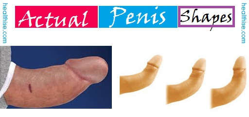 Masturbation changes penis shape