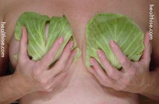 cabbage leaves mastitis breast infection
