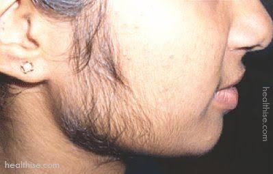 face hairs facial problem cure homeremedy
