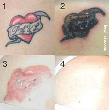 how to remove tattoo herbal remedies