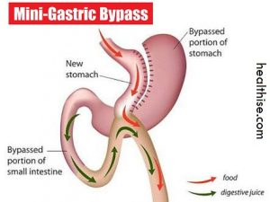 the pros and cons to gastric The pros and cons of medical  reflux include heartburn regurgitation of bitter acid into the throat bitter acid reflux medications that neutralize gastric acid.