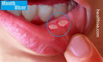 mouth ulcers canker sores home remedies