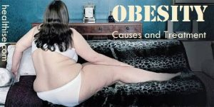 obesity causes prevention treatment