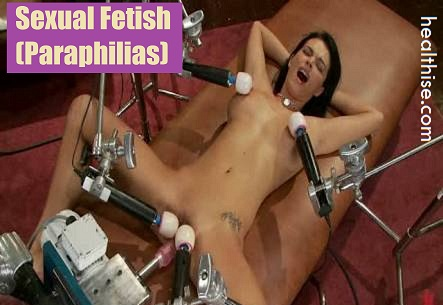sexual fetish paraphilias