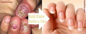 toe nail care causes home remedies treatment