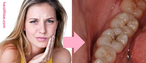toothache natural home remedies