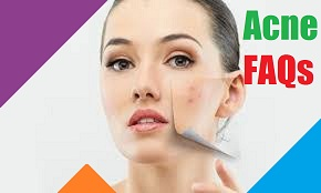 Acne FAQs Frequently Asked Questions Prevention