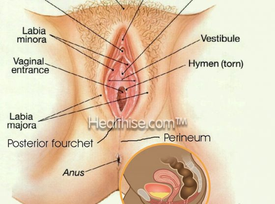 How to Tighten Vagina with Asian Secret Herbs and Exercises