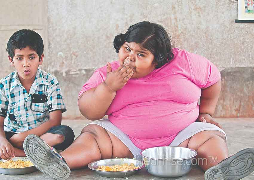 obese child nutrition healthise