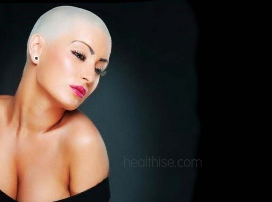 baldness due to menopause healthise