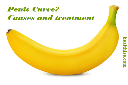 causes-peyronie-penis-curve-treatment