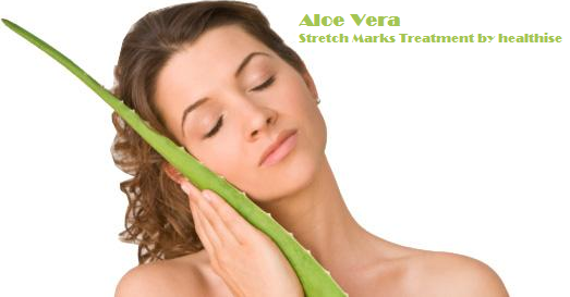 stretch-marks-treatment-aloevera