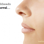 How to Remove Blackheads Easily: Home Remedies Guide