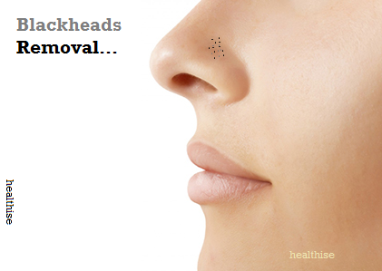 healthise-how-to-remove-blackheads