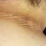 How to Get Rid of Black Neck; Dark Pigmentation Treatment