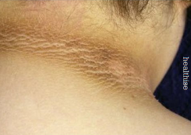 home-remedies-dark-neck-pigmentation